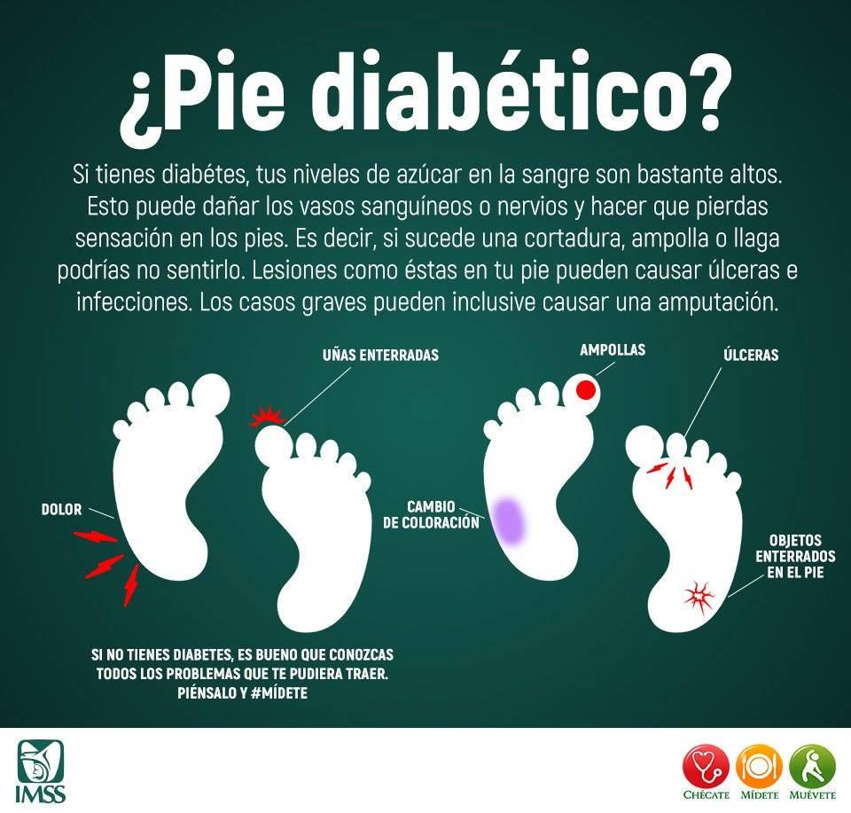 amputación de pies de diabetes