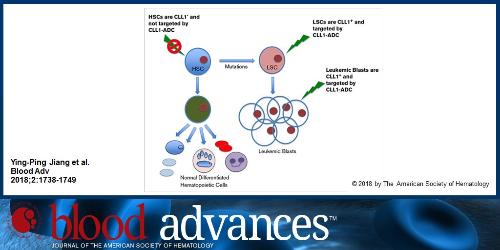 hematology case studies cll Johns hopkins advanced studies in nursing  the patient was initially diagnosed in j anuary 2003 with cll,  case study (continued at top of.