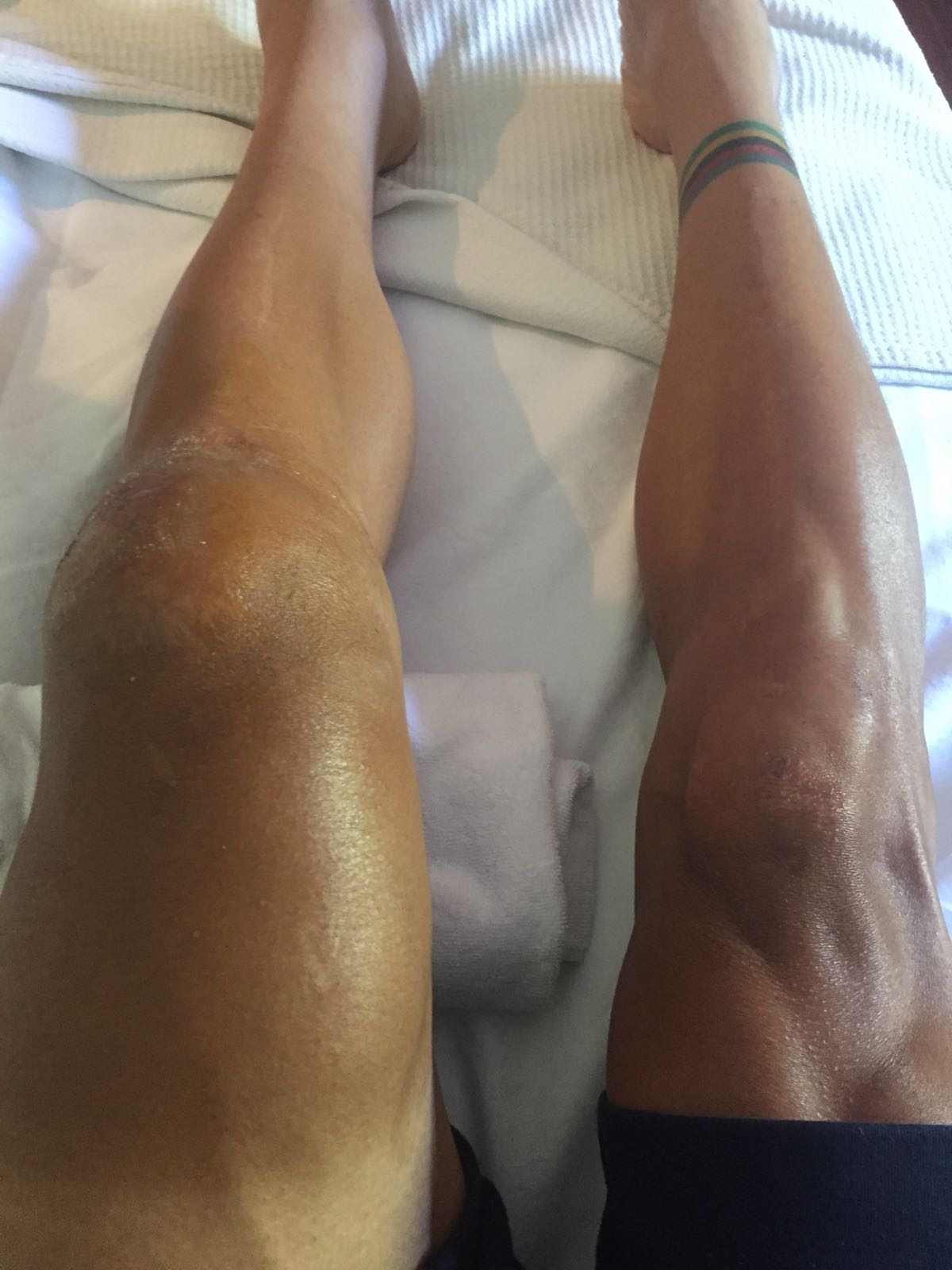 Philippe Gilbert On Twitter When You Have A Broken Knee Cap And