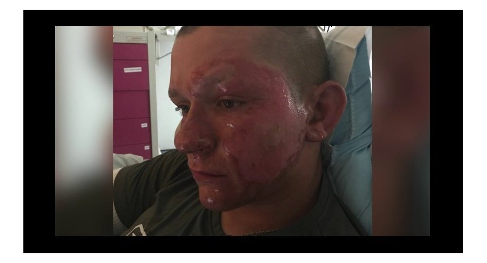 'His face was peeling off': US teen hospitalized after touching giant #hogweed https://t.co/ajJpYf2Pyu #Virginia