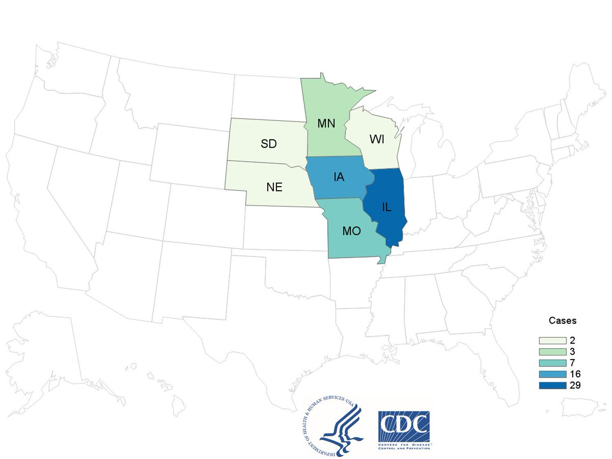 CDC is investigating a #Cyclospora outbreak among people in 7 Midwestern states, many of whom ate salads from McDonald's. If you ate salad from McDonald's in affected areas and have symptoms, see a doctor. For the latest information: https://t.co/OgCOaMzGFz.
