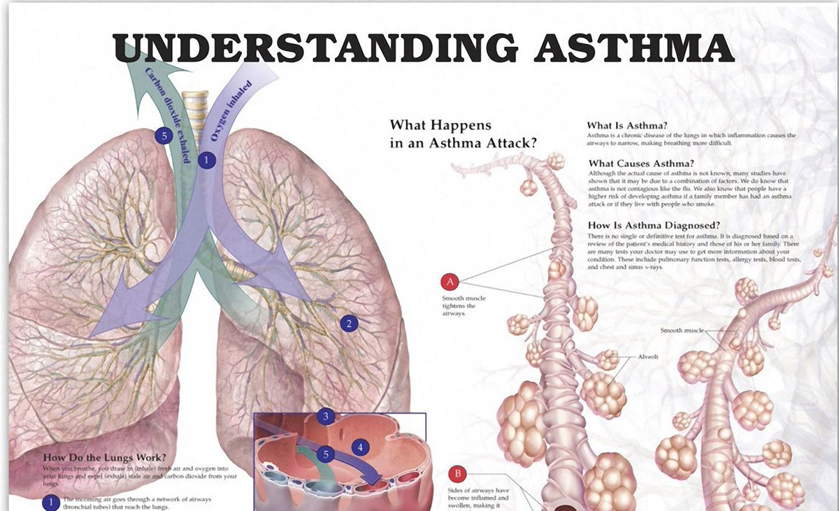 Asthma Latest News Breaking Headlines And Top Stories Photos