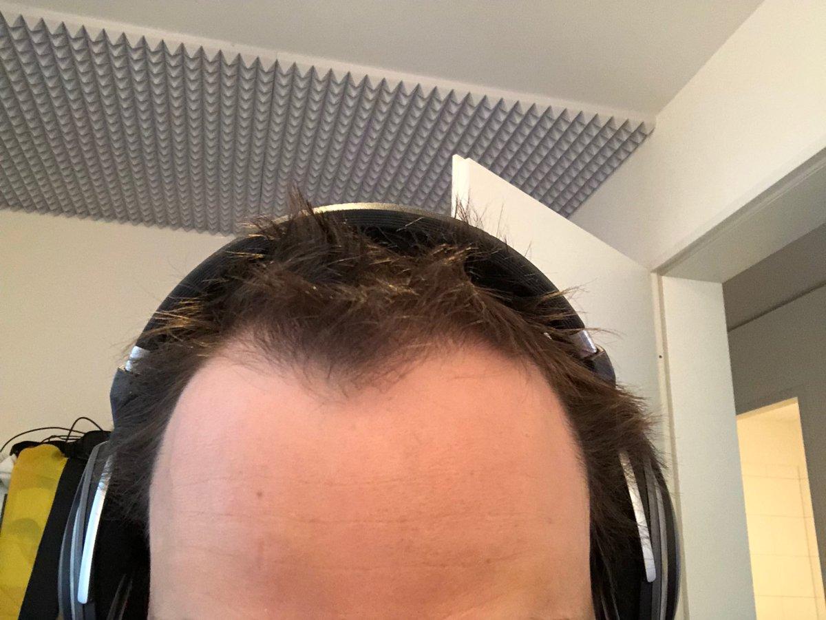 Haare geheimratsecken kurze Frisuren mit