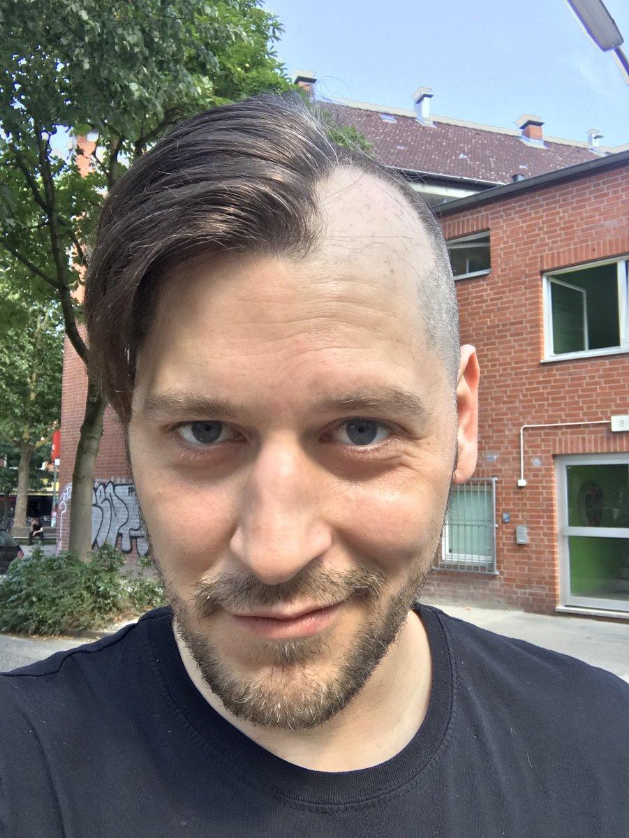 Simon Krätschmer Frisur