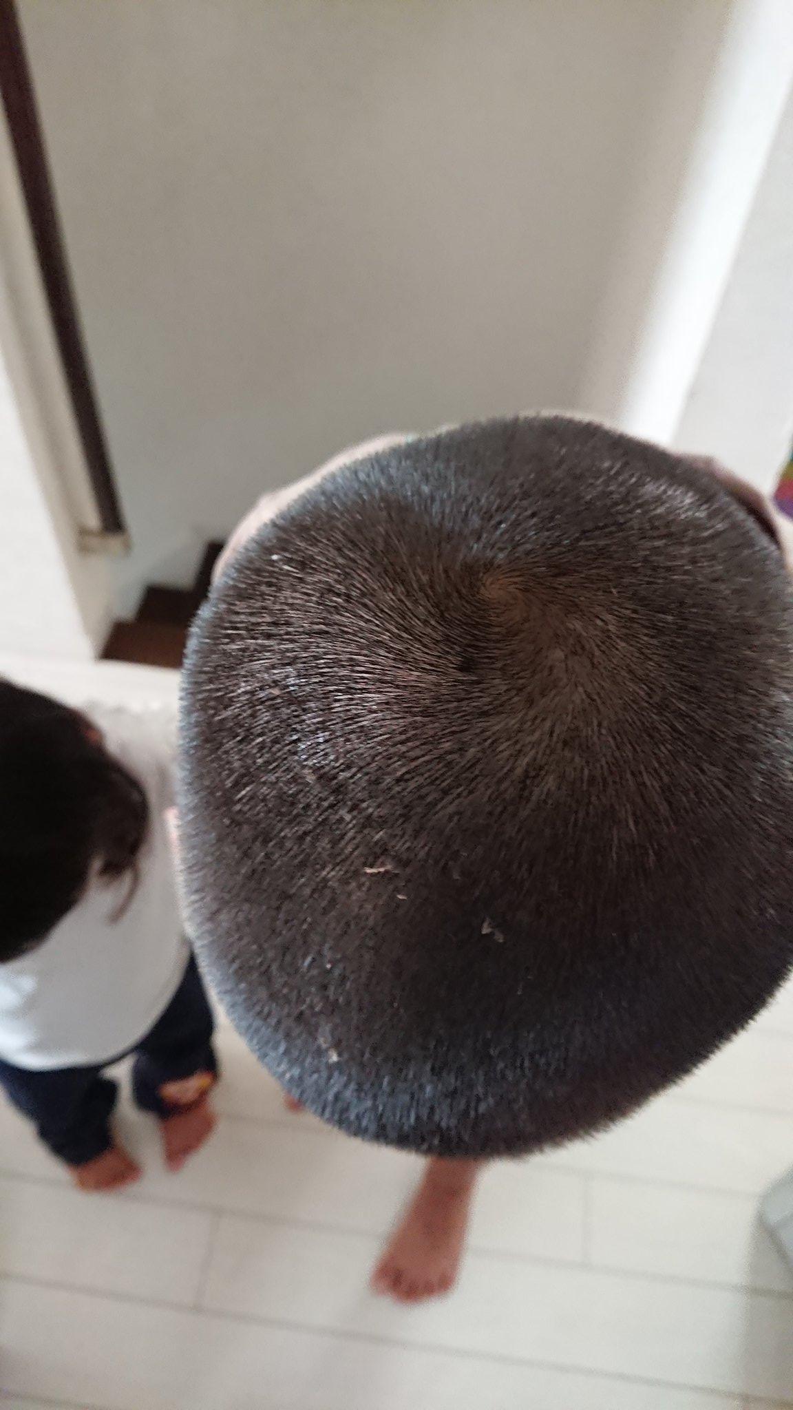 皮 むける が の 頭皮
