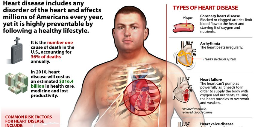 RT #Heart Disease Infographic ➡ https://t.co/Xso61PRuGP https://t.co/jrAzlXEsDO #health #well