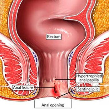 Fissure in anus almost same
