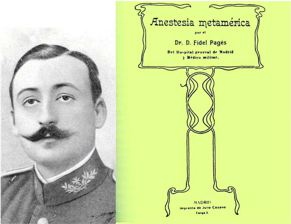 Fidel Pagés, médico militar, combatió en la Guerra de Melilla, donde su obsesión fue hallar un tipo de anestesia local para intervenciones quirúrgicas. Publicó su descubrimiento en 1921, dos años antes de morir. En el nº 237 (julio): 'Pagés, el olvidado inventor de la epidural'.