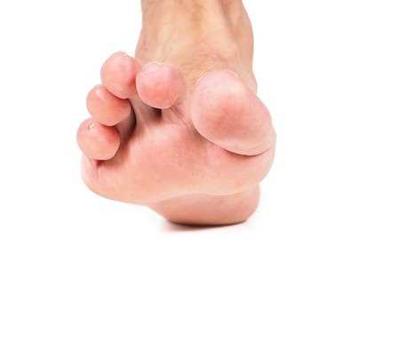 Affiliated Foot Ankle Center On Twitter If You Notice One Or