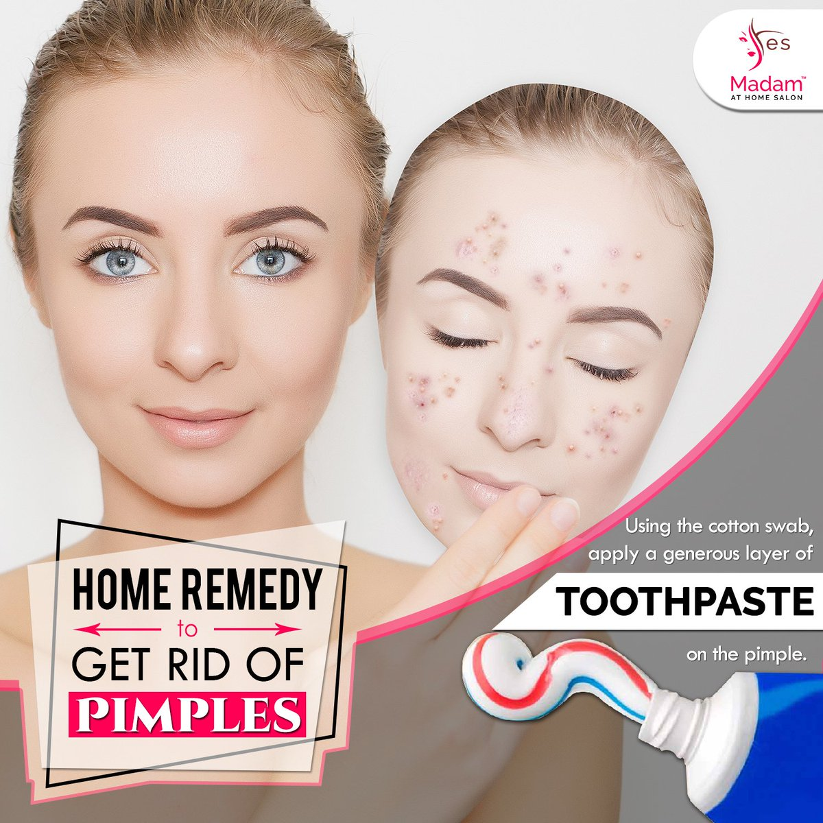 """yes madam on twitter: """"#homeremedy to get rid of #pimples by"""