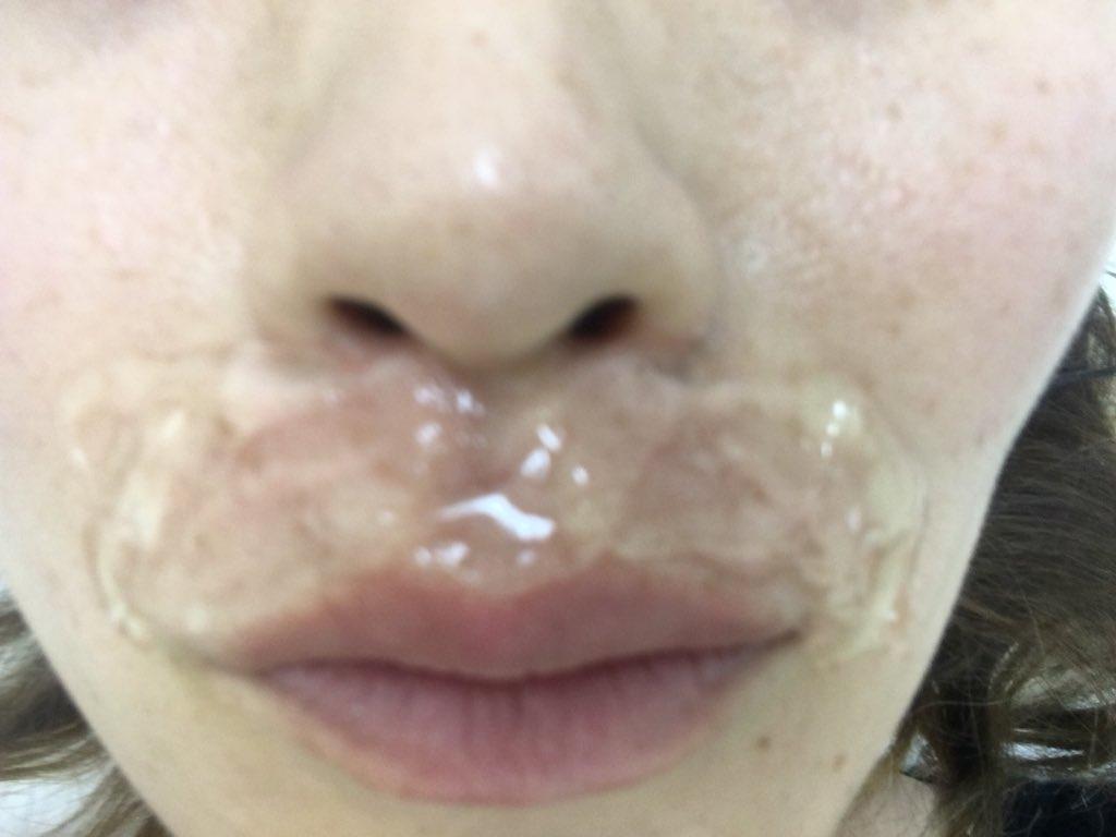 が 痛い 鼻 の 中