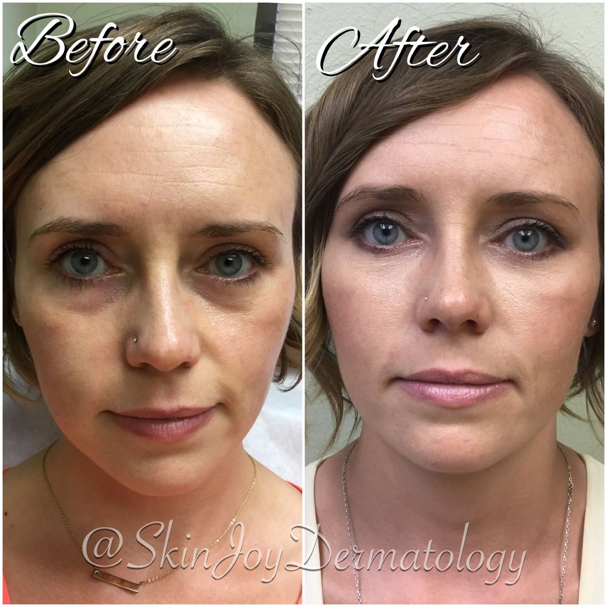 Skin Joy Dermatology on Twitter: