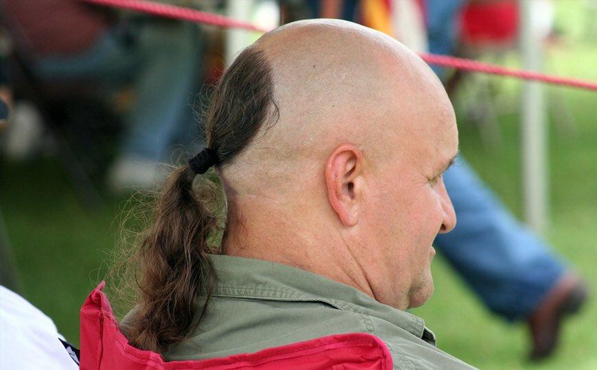 jojo siwa hairline check