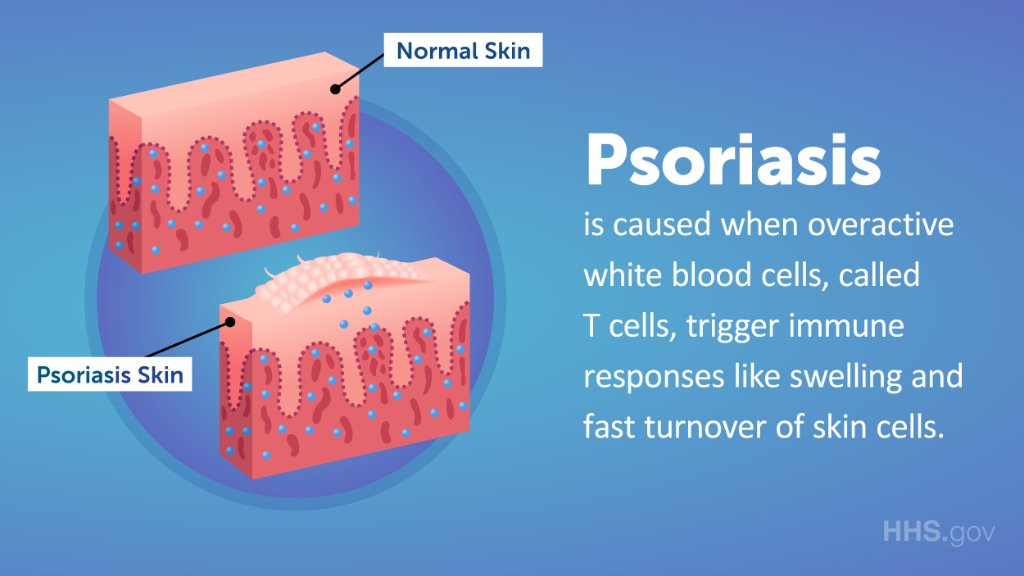 psoriasis and your immune system)