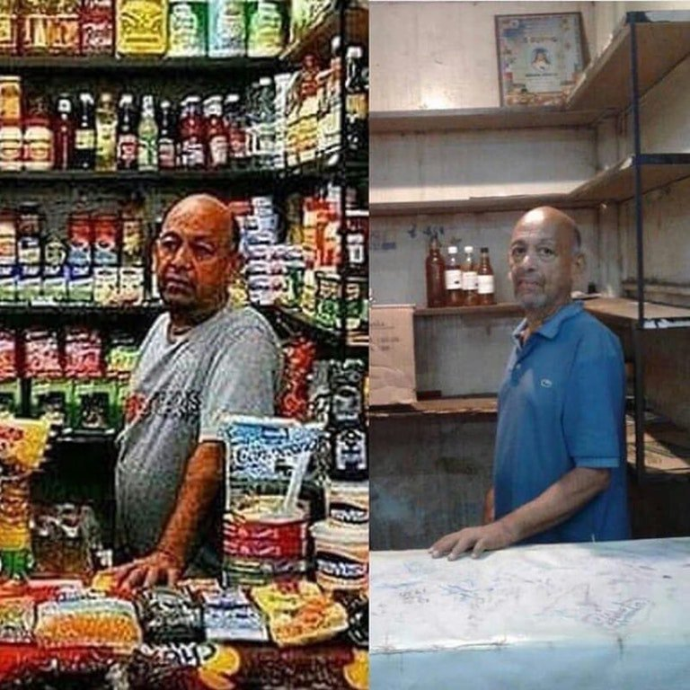 Venezuela.  Inflation, 2018: 12,615%  GDP growth, 2016: -17%  GDP growth, 2017: -15%  GDP growth, 2018: -16%  Economy since 2011: Shrunk by 70%   Share of population living in poverty: 87%  Average weight lost per person, 2016: 8 kg  Average weight lost per person, 2017: 11 kg