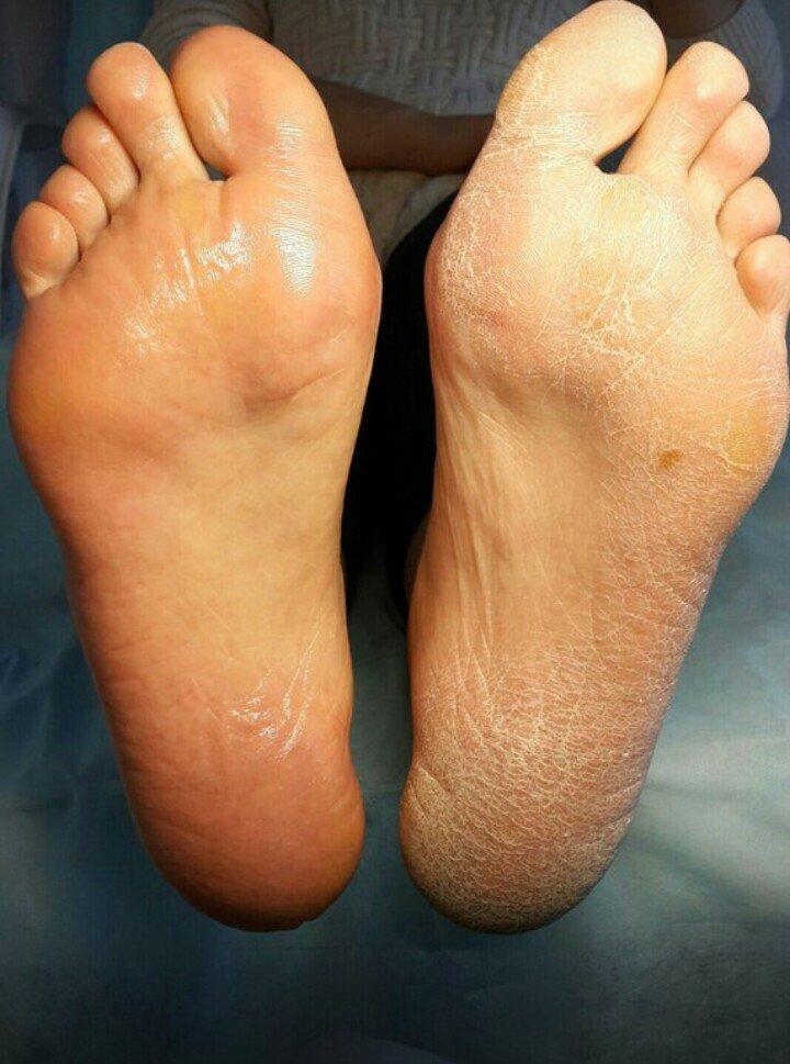 картинки потливость ног дваждыперистая прекрасно растет