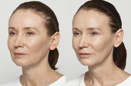 facialinjection hashtag on Twitter