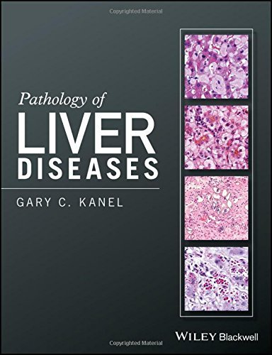 pdf type 1 diabetes for