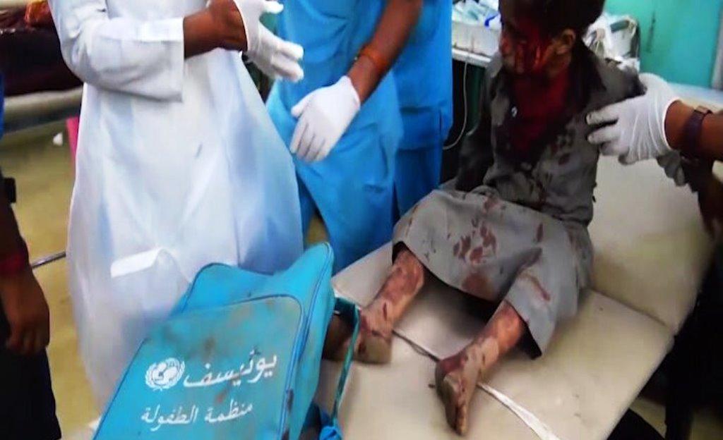 Il #video scioccante postato da @AhmadAlgohbary di un bambino sopravvissuto al bombardamento in #Yemen. Sotto accusa #ArabiaSaudita. ATTENZIONE IMMAGINI MOLTO FORTI. #VelvetMaghttps://velvetnews.it/2018/08/10/yemen-strage-di-bambini-il-video/  - Ukustom