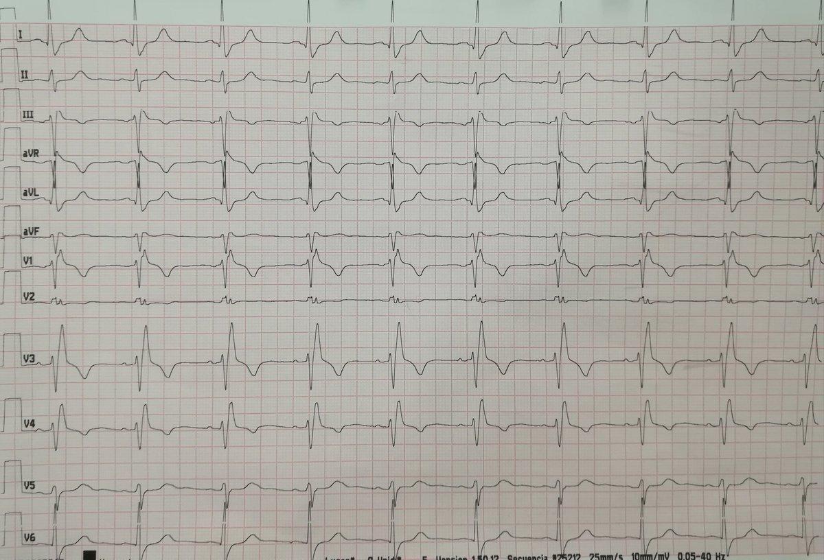 Este es su ECG basal realizado tras un periodo de 24 horas en Urgencias lavando fármacos.