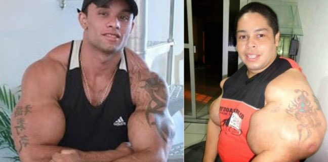 Horrible Cases if Teens using Synthol 😱 generationiron.com/watch-teens-sy…