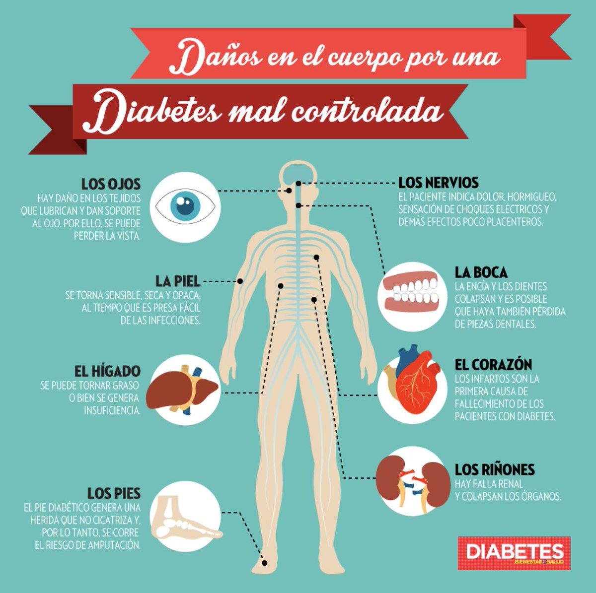diabetes dolor en el pie