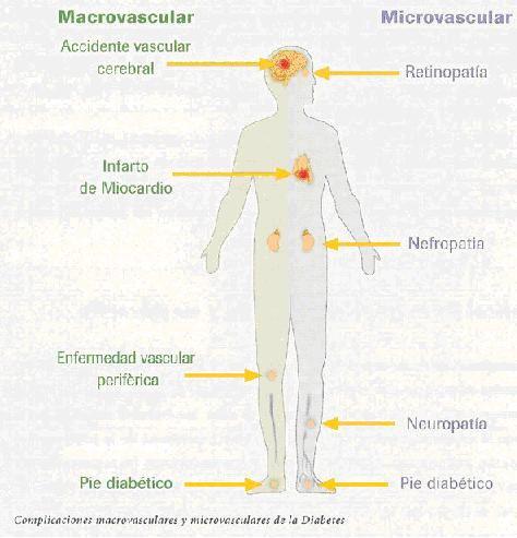 enfermedad macrovascular vs microvascular en diabetes