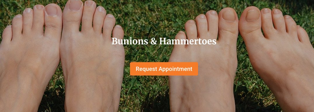 Bunions can occur on the big toe, but also on the outside of your little toe. But we can help you prevent them all!  https:// 1l.ink/Q4VB637  &nbsp;  <br>http://pic.twitter.com/FGc08F0btE