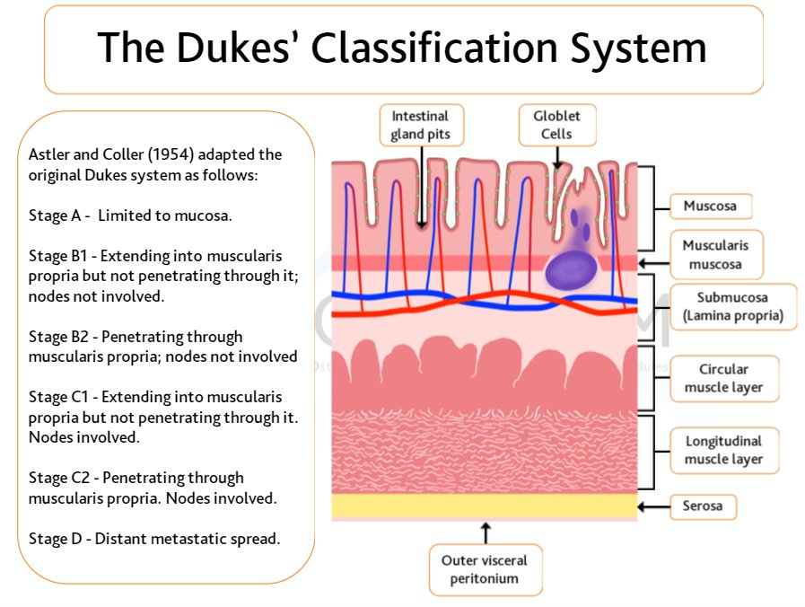 Ecancer On Twitter Duke S Classification System For Colorectalcancer Is Used In Cancerstaging To Determine The Most Effective Treatment For Cancerpatients Learn More With Our Interactive Course Of Colon Cancer Surgery Https T Co A57lvox8gv