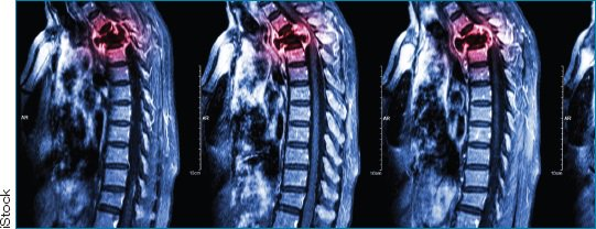 How is targeted radiofrequency #ablation compatible with chemotherapy or radiation therapy? Learn more. #oncology #spine  http:// ow.ly/ttqR30lqdHv  &nbsp;  <br>http://pic.twitter.com/KPgYkztqbl