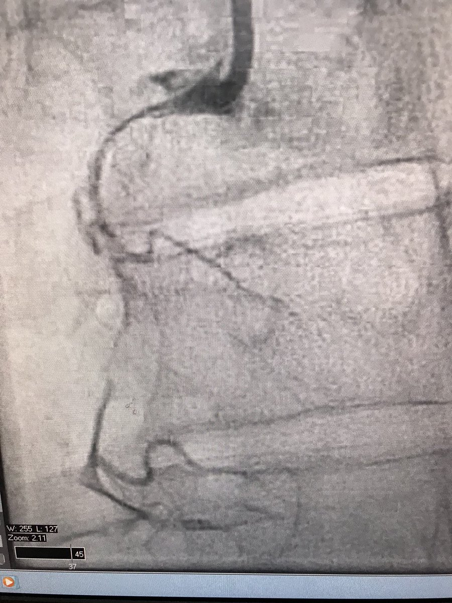 Is SCAD ever cured or even stabilized? 4 years ago put multiple stents in lady with extensive RCA SCAD. Later dissected PDA. Today NSTEMI and strange RCA lesion—OCT shows new hematoma, another dissection. <br>http://pic.twitter.com/QD1sl8H6Sg