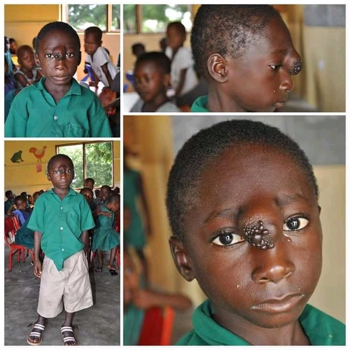 This young boy in Ghana has tumour around his forehead. Please RETWEET till it reaches any philanthropist who wishes to help.. Please emember his saviour may be on your TL.. To help please contact 0546261175