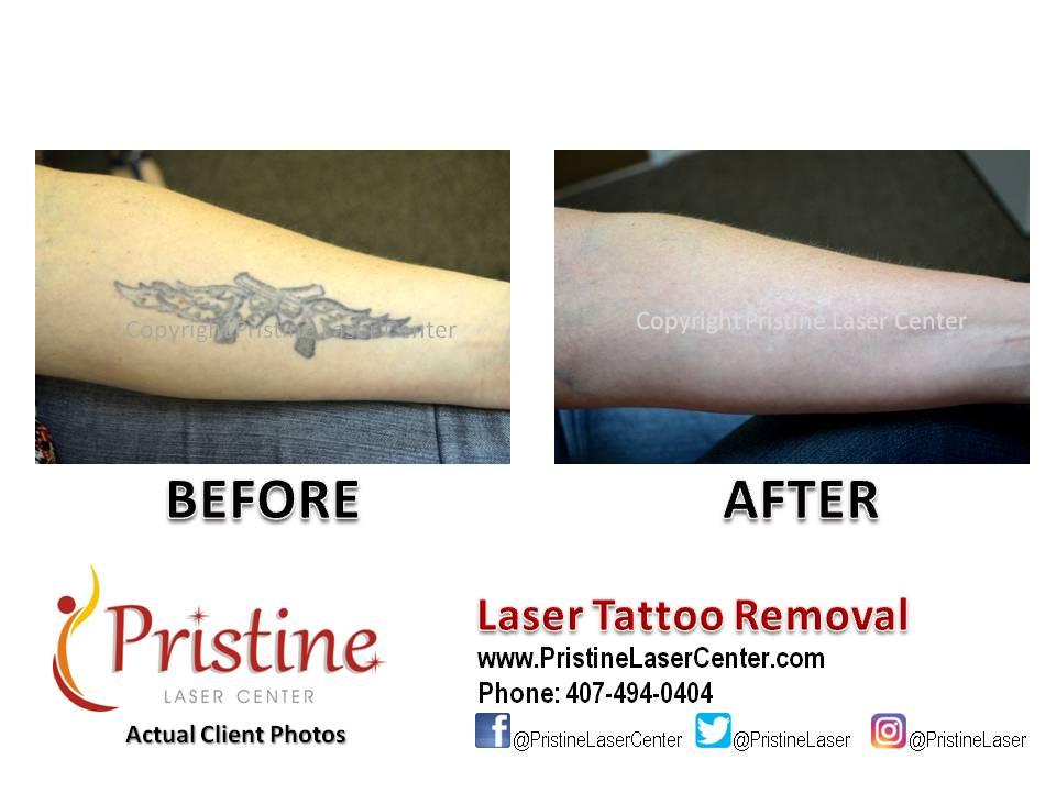 Pristine Laser a Twitter: