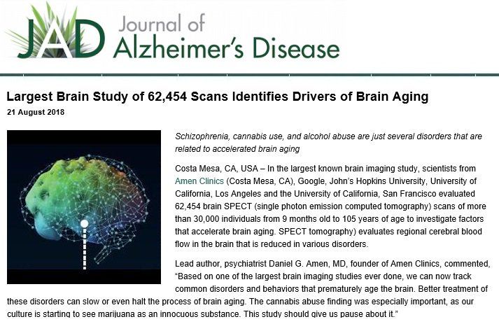 case study of alzheimers disease This case study is part of an alzheimer's case study continuing medical education (cme) series sponsored by pfizer canada for more information regarding the program in your area, please call your local pfizer representative.