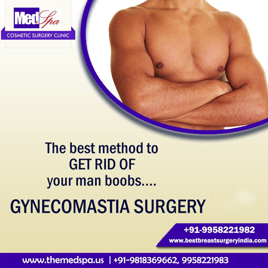 San diego gynecomastia surgery