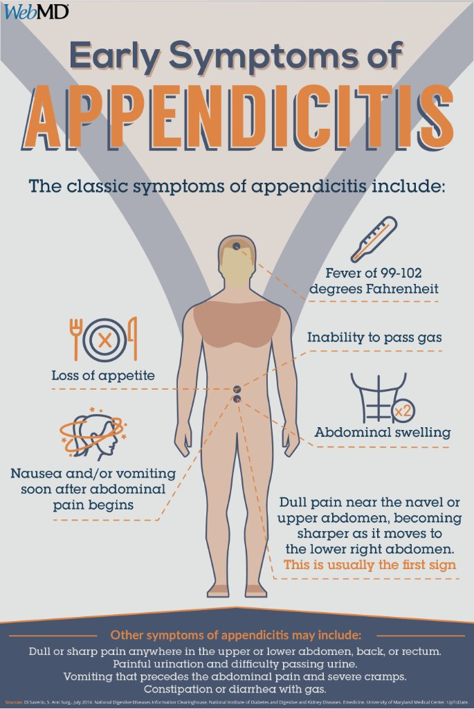 Webmd On Twitter Appendicitis Is Almost Always A Medical Emergency