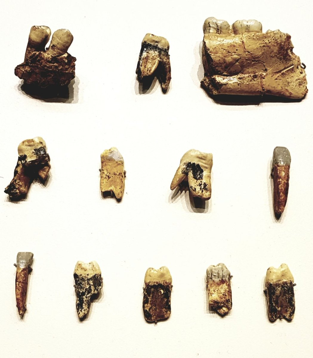 #FossilFriday Teeth and mandible fragments composing Hominid 1 of Homo antecessor, found in Gran Dolina, #Atapuerca. Dated c. 800 ka.