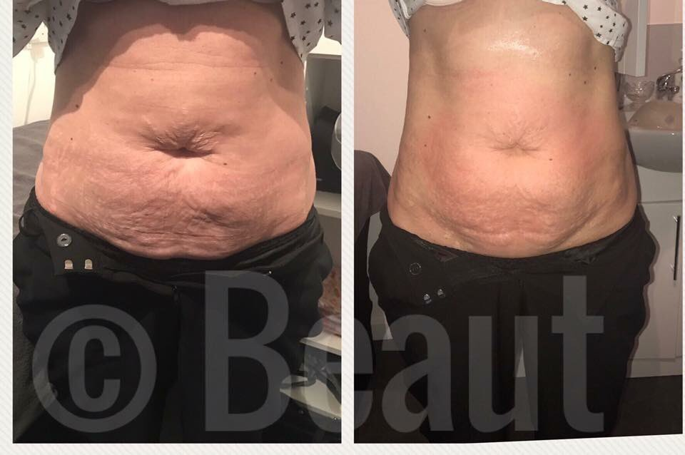 Beaut On Twitter Loose Skin After Weight Loss These Are True Results Before And Immediately After Just One Session Of 3d Lipo Find Out How 3d Lipo Can Start Your Journey To