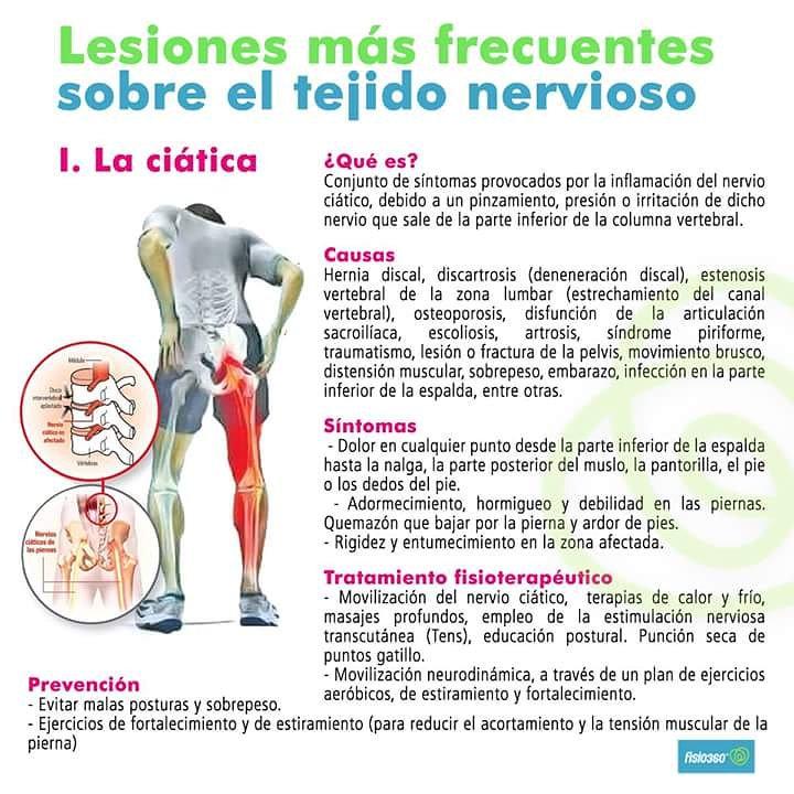 sintomas de pinzamiento en la columna vertebral