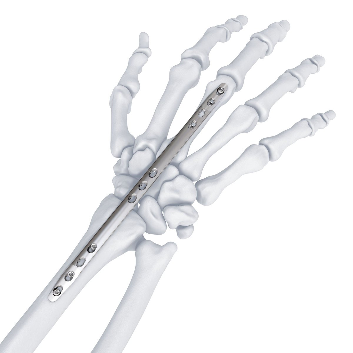 synthes bioresorbable Synthes, inc, together with its subsidiaries, develops, manufactures, and distributes instruments, implants, and biomaterials for the surgical fixation, correction, and regeneration of the human and animal skeleton and its soft tissues.