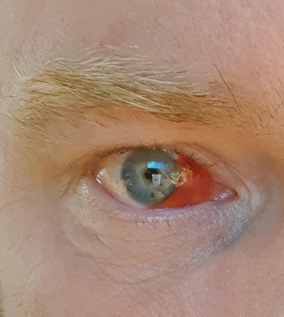 spruckna blodkärl i ögonen