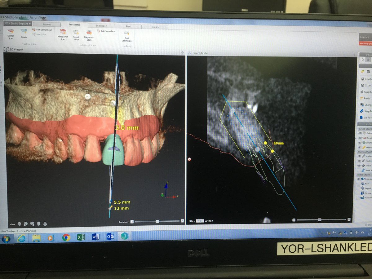 Cox Dental Laboratory on Twitter: