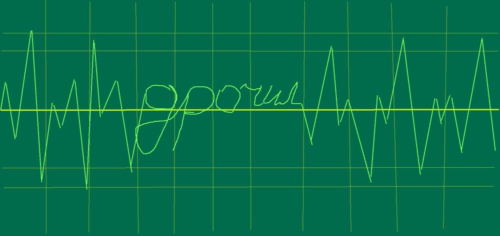 картинка прикол кардиограмма сердца давно безответно
