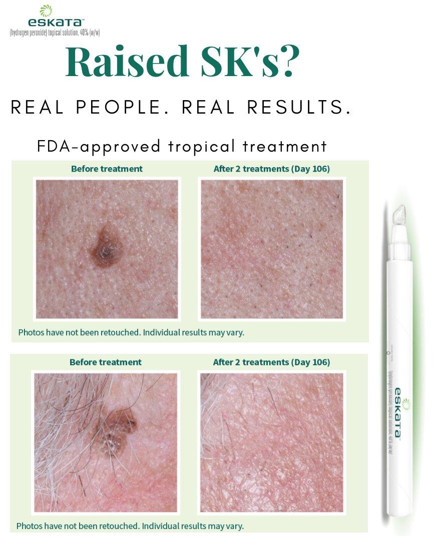 Advanced Dermatology & Skin Cancer Institute