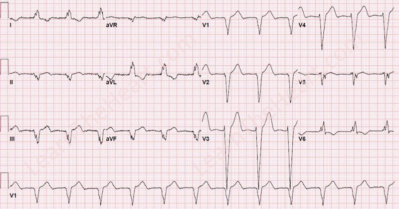 Learntheheartcom On Twitter Chapman Sign Acute Mi With Lbbb On
