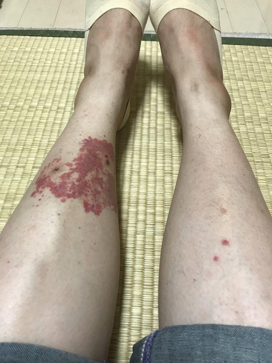 紫斑 病 大人 足