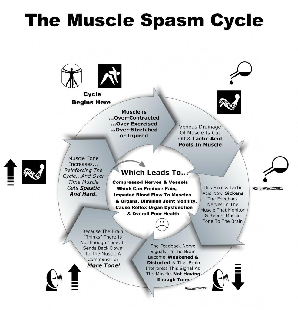 Why do we get #muscle spasms & how can we stop them? - Kinetic Physiotherapy https://t.co/Yi0VOaFAFw