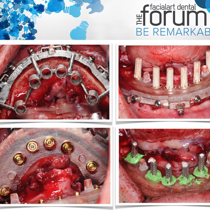 facialartdentalforum hashtag on Twitter