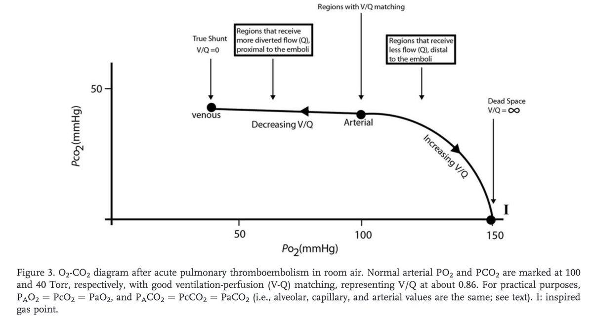 Tony Breu On Twitter 1 Why Does Acute Pulmonary Embolism Pe