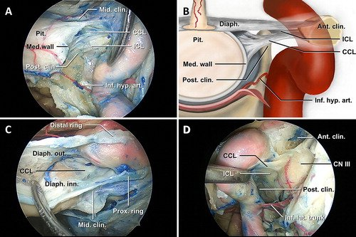 J Neurosurgery On Twitter Onlinefirst The Medial Wall Of The